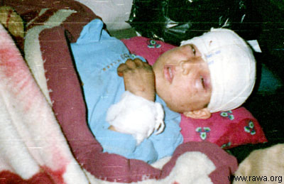 Wounded child in Jalalabad